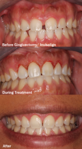 How Often Should I Visit the Dentist During Invisalign