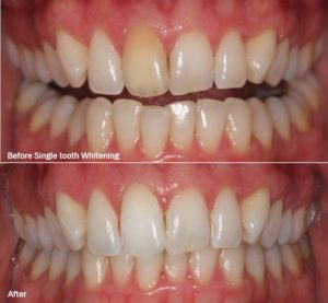 tooth whitening results issaquah