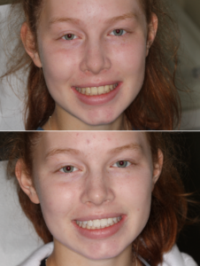 Teeth Whiting Treatment Remarkable Smiles Of Issaquah