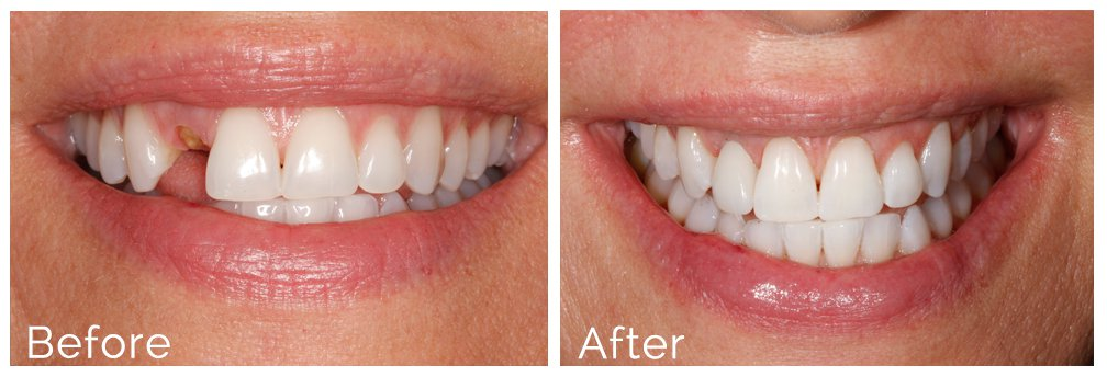 dental implants before and after issaquah
